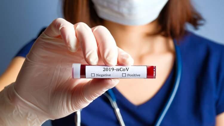 Koronavirüste umutlandıran gelişme! Kovid-19 mutasyona uğradı: G614