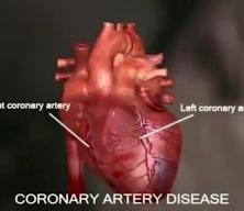 Bu belirtiler varsa dikkat! Kalp kriziyle sonuçlanabiliyor (