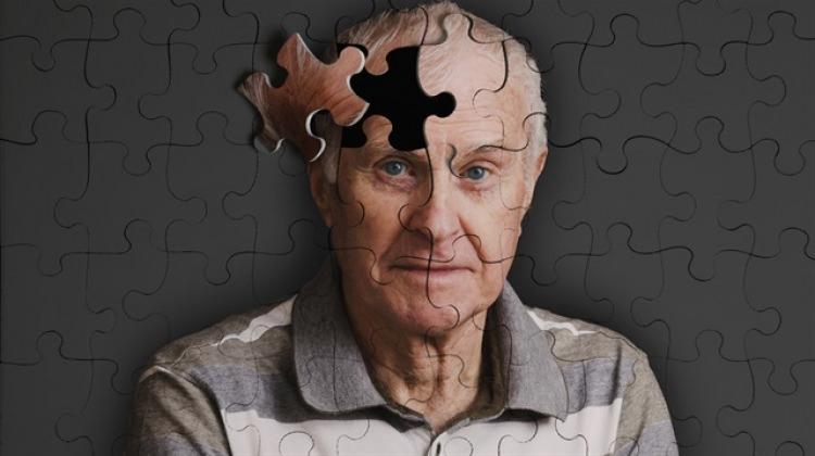 Alzheimer'ın erken tanısı için yeni adım!