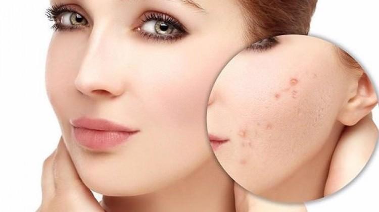 Alerjik bünyelerde çıkan akneler… - Cilt Bakımı Haberleri
