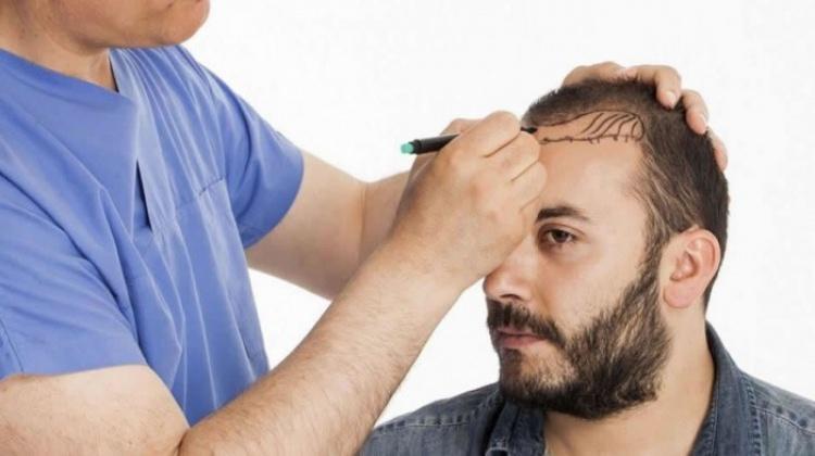 Saç ekimi tarih oluyor