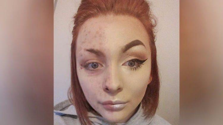 Makyajı silince hastalığı ortaya çıktı!