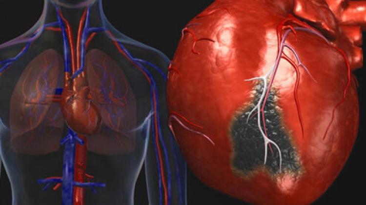Sağlıklı bir kalp için 10 tavsiye