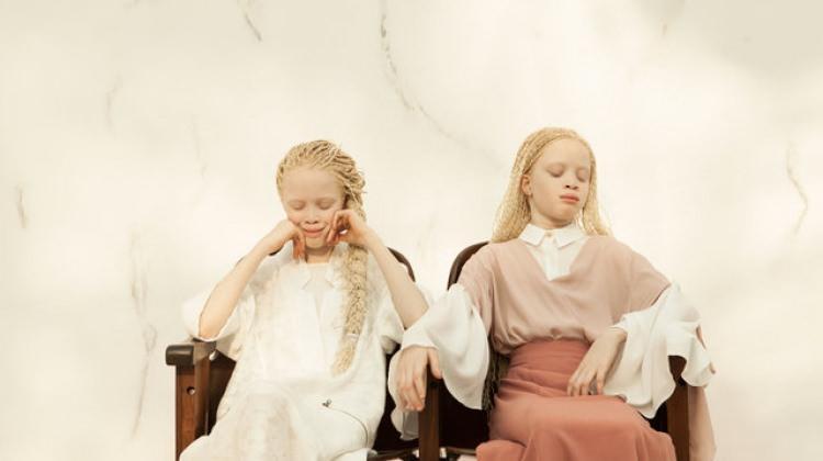 Albino ikizlerin güzelliği herkesi hayran bıraktı