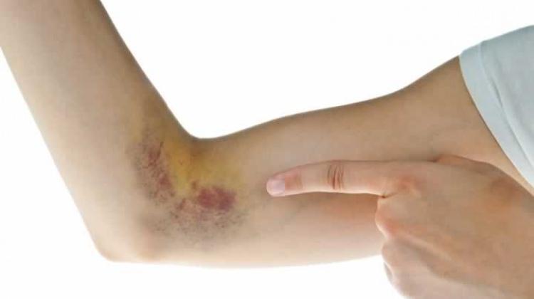 Vücudunuzun verdiği 5 sinyale dikkat!