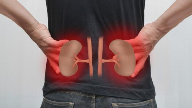 Böbrek sağlığını etkileyen 5 hastalığa dikkat!