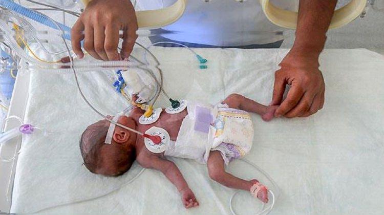 'Mucize bebek' ameliyatla hayatta kalmayı başardı