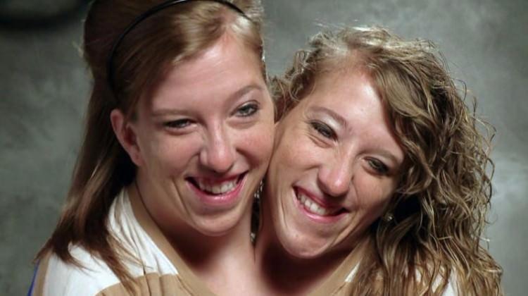 Tek bedende yaşayan yapışık ikizler şaşırttı!
