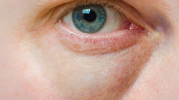 Göz taşı nedir? Belirtileri neler?