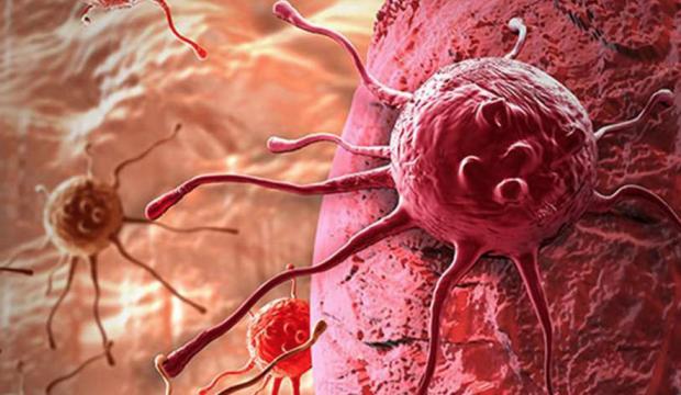 Kanserden korumanın yolları nelerdir? Uzmanlardan kritik öneriler...