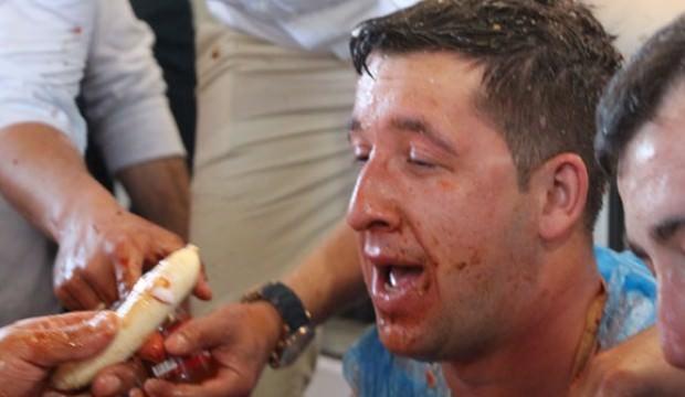 Sirke ve acı biberli bal yiyen damat isyan etti