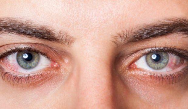 Göz kanseri nedir? Belirtileri nelerdir ve tedavisi var mıdır?