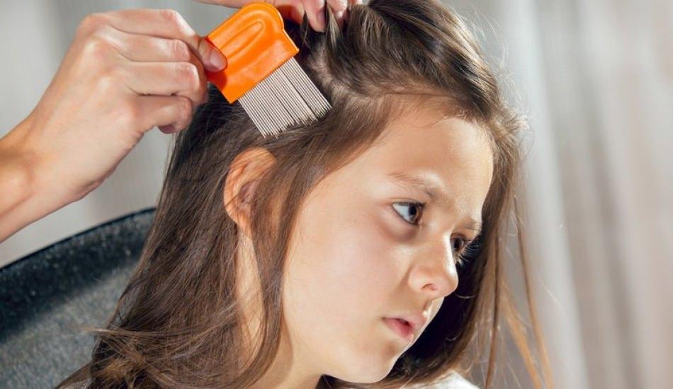 Çocuklarda görülen saç derisi problemleri