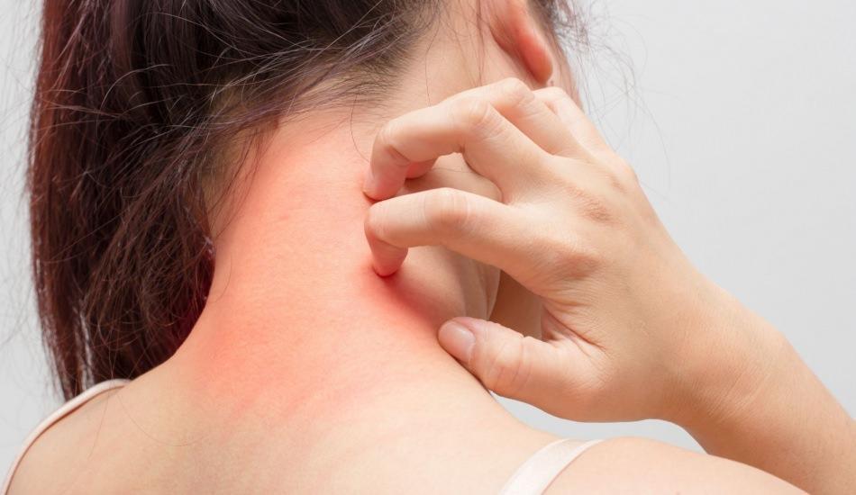 Nilüfer'den üzücü haber! Mantar enfeksiyonu nedir? Kaç çeşit mantar enfeksiyonu vardır?