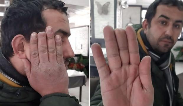 Elinde kopan parmağı ile hastane hastane gezmişti! Yeni gelişme…