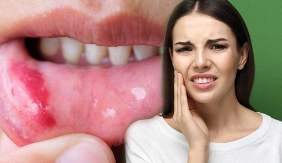 Ağız içi yara nedir & neden olur? Doğal yolla ağız içi yaraları geçirme...