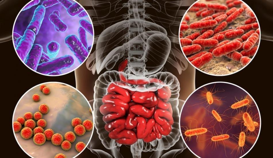 Bağırsak florası nedir ve bozulursa ne olur? Bağırsak florası bozukluğu  belirtileri nelerdir? - Sağlık Haberleri, Haber7