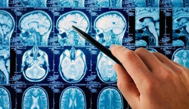 Beyninin yarısı olmadan yaşadığını öğrendi