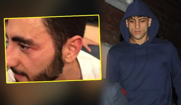 Reynmen muhabire saldırdı: Yusuf Aktaş çirkin saldırı sonrası karakolluk oldu