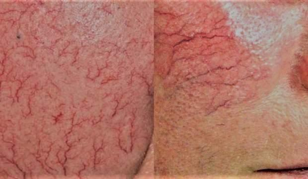 Kılcal damar çatlaması evde bitkisel tedavisi: Lazer tedavisiyle geçer mi?