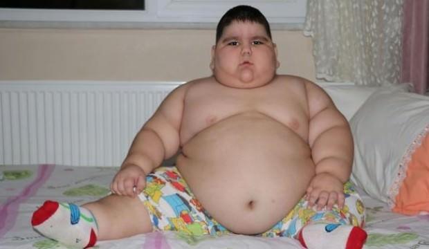 4 yaşında 70 kiloya ulaşan Yağız, yardım bekliyor