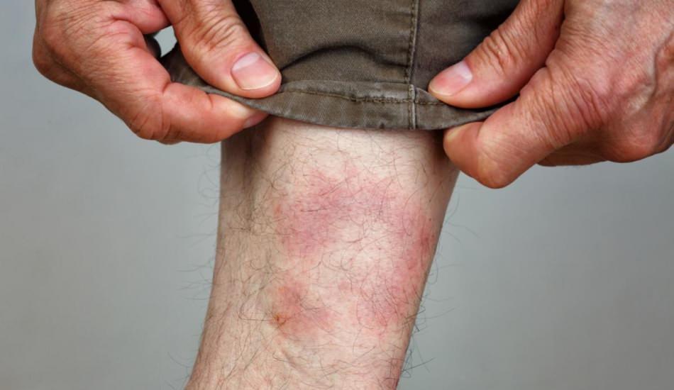 Lyme hastalığı nasıl ortaya çıkar? Lyme belirtileri nelerdir? Lyme hastalığı tedavisi var mıdır?
