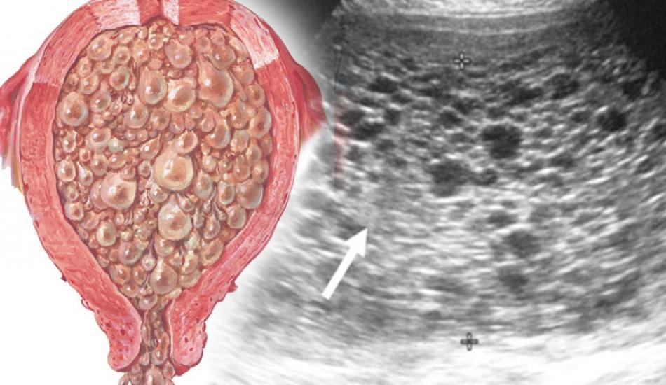 Mol gebelik (üzüm gebelik) nedir, belirtileri neler? Mol gebelik nasıl anlaşılır?