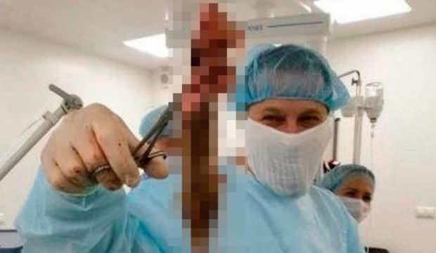 Haftalarca karın ağrısıyla gezdi! Çıkana doktorlar bile şaşırdı