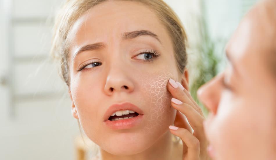 Cilt neden kurur? Kuru cilde ne yapılır? Kuru cilt için en etkili bakım önerileri