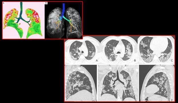 Röntgen filmleri ilk kez yayınlandı! Korkunç: Koronavirüs bu hale getiriyor