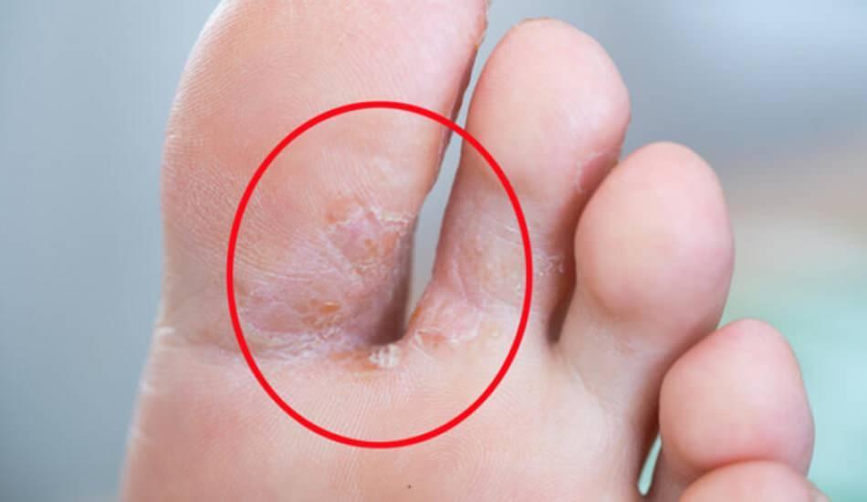 Ayak mantarı nedir? Ayak mantarının belirtileri & Ayak mantarının tedavisi