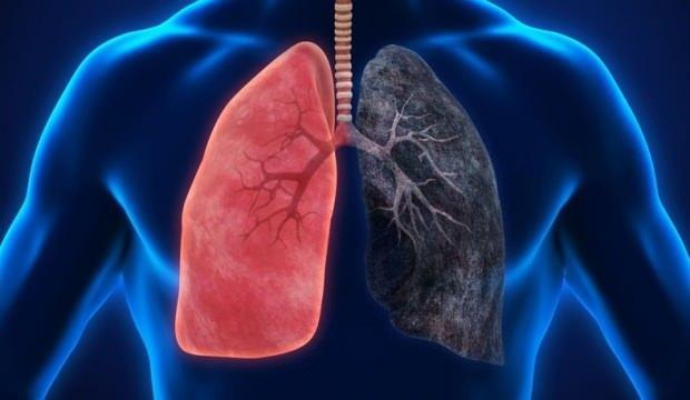 Akciğere ne iyi gelir? İşte akciğeri koruyan ve temizleyen besinler