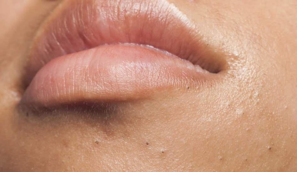 Dudak çevresinde sivilce neden çıkar? Perioral Dermatit nasıl tedavi edilir?