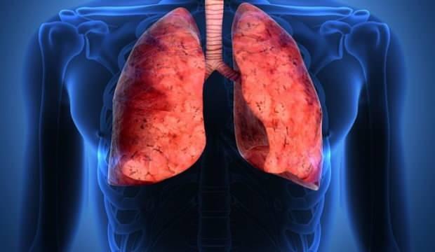 Akciğer kanserinin belirtileri nelerdir? Akciğer kanseri tedavisi nasıl olur?