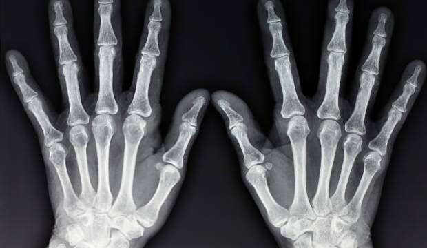 Parmak çıtlatmanın zararları nelerdir? Parmak çıtlatma nasıl bırakılır?