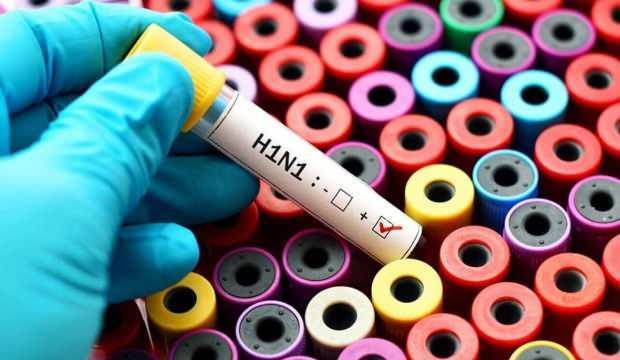 Corona virüsün ardından Çin'de ortaya çıkan G4EA H1N1 virüsü nedir?
