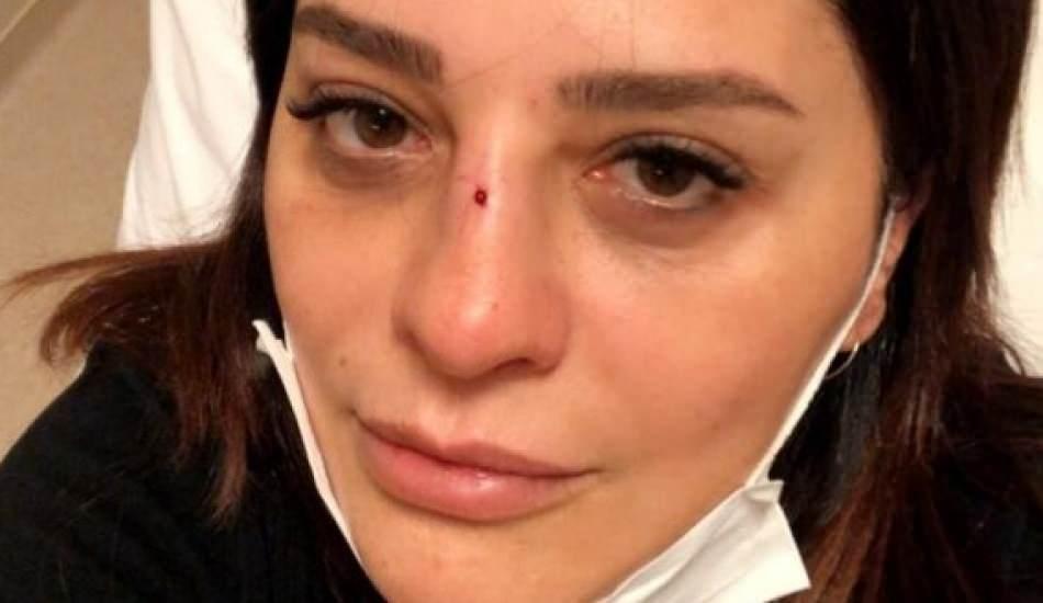 Ünlü şarkıcı Reyhan Karaca bahçeden düşüp burnunu kırdı!