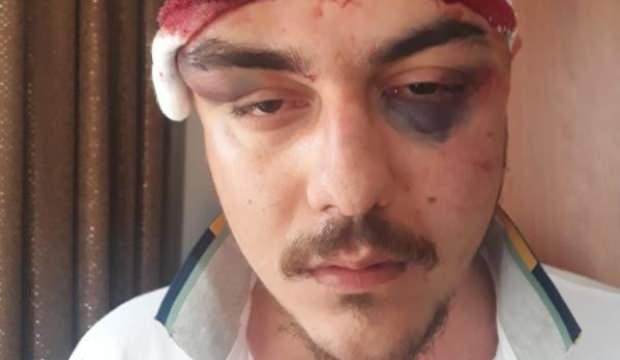 4 kişi tarafından feci şekilde dövüldü, 4 gün komada kaldı