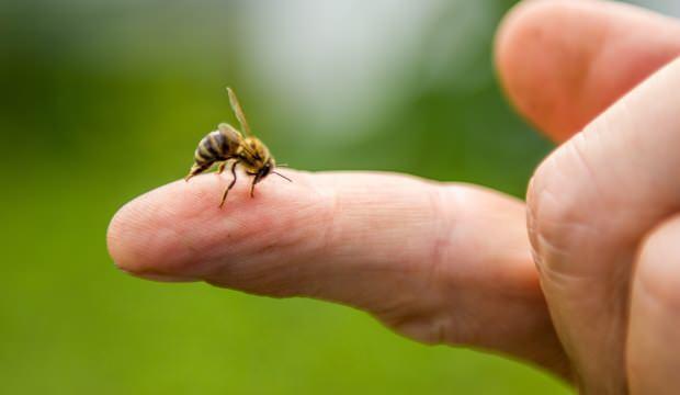 Arı sokmasına ne iyi gelir? Arı sokmasına sirke iyi gelir mi? Arı sokması tedavisi...