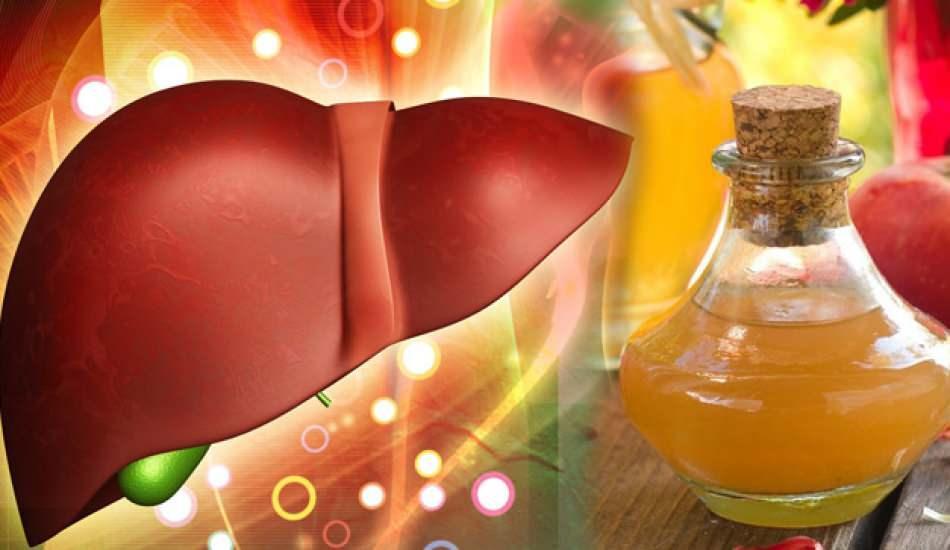 Karaciğer neden yağlanır ve belirtileri nelerdir? Karaciğer yağlanmasını  doğal yolla temizleme - Sağlık Haberleri