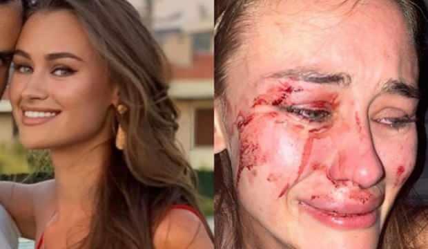Ukraynalı model dövülmüştü: 6 eğlence mekanı kapatıldı!