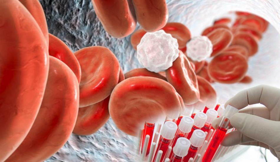 Kan grubuna göre beslenme! Kan grubu diyeti nedir? Kan grubu diyeti işe yarıyor mu?