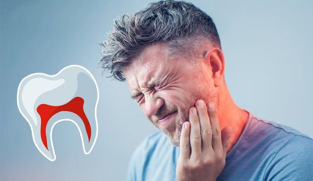 Diş ağrısı nasıl geçer? Diş Ağrısı Geçirme