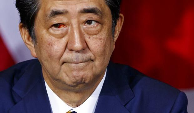 Japonya Başbakanı Shinzo Abe, hastalığı yüzünden istifa etti! Türkiye'den açıklama