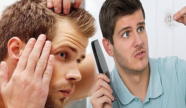 Aşırı saç dökülmesine ne iyi gelir | Erkeklerde tepeden durmayan saç dökülmesinin nedenleri