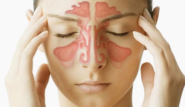 Sinüzit nasıl geçer? Kronik, akut, alerjik, ilerlemiş sinüzit ağrısının belirtileri ve tedavisi