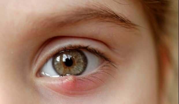 Arpacık neden olur belirtileri nelerdir? Gözdeki arpacığı geçiren doğal tedavi yöntemleri…