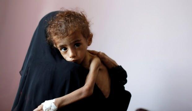 BM: Yemen, kıtlık tehlikesi ile karşı karşıya