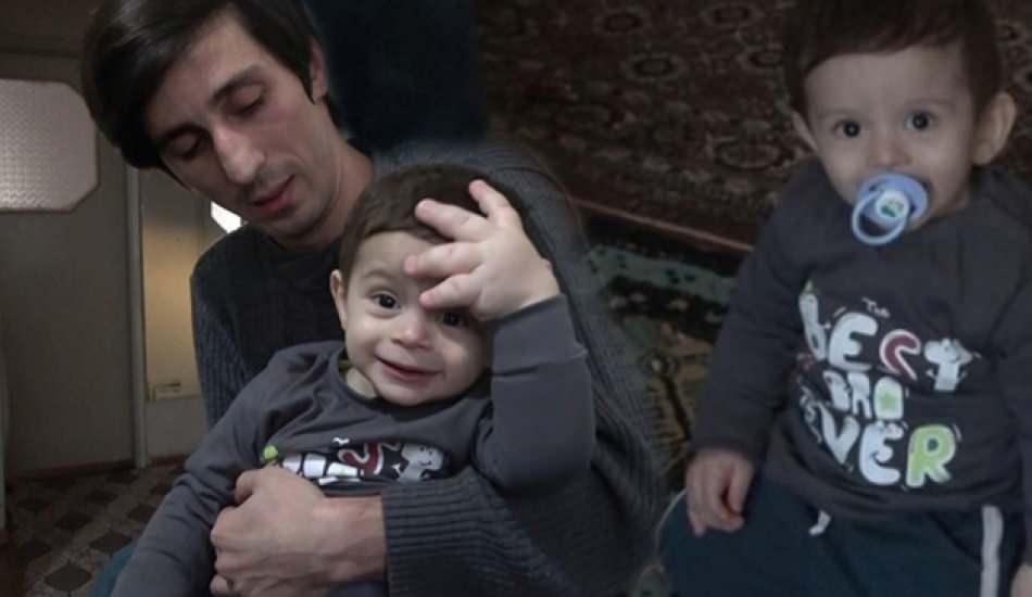 1,5 yaşındaki çocuk nadiren görülen hastalığa yakalandı! Bir eli dev gibi...