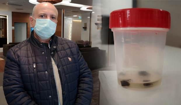 Kanser diye biyopsi yaptılar, 32 yıl sonra akciğerinden çam fıstığı çıktı!
